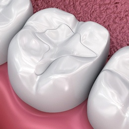 Digital image of a tooth on the bottom row receiving a tooth-colored filling