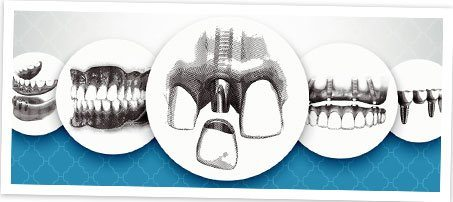 Series of sketches for dental implant placement