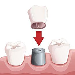 Diagram of crown going onto dental implant