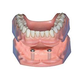 Computer model of implant-retained dentures
