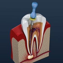 Diagram of a root canal procedure