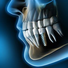 X-ray of a dental implant
