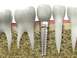 dental implants in Arlington