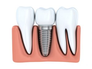 "You need extensive tooth replacement. You feel you are faced with an ""either/or"" choice: dentures or dental implants. Dr. Douglas Baldwin of Foundation Dental Solutions in Arlington will guide you through the decision so your smile is strong, beautiful and long-lasting."