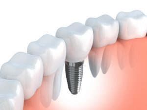 Missing teeth affect your looks and oral function. Learn why you should replace them with dental implants in Arlington or other prosthetic options.