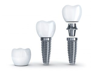 Implant-retained dentures in Arlington are lifelike