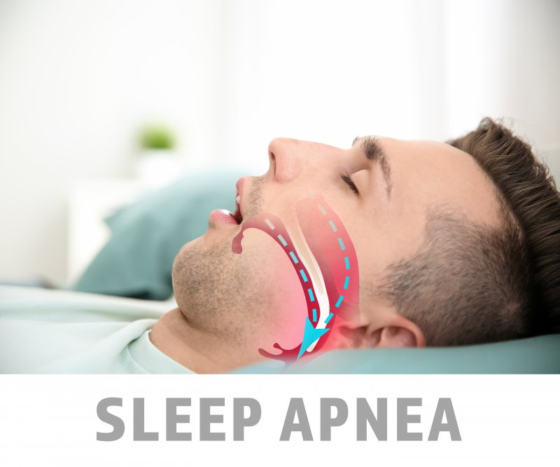 """a young male asleep with the words """"sleep apnea"""" and a diagram showing his inability to breathe properly"""